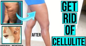 cellulite with Ceffina
