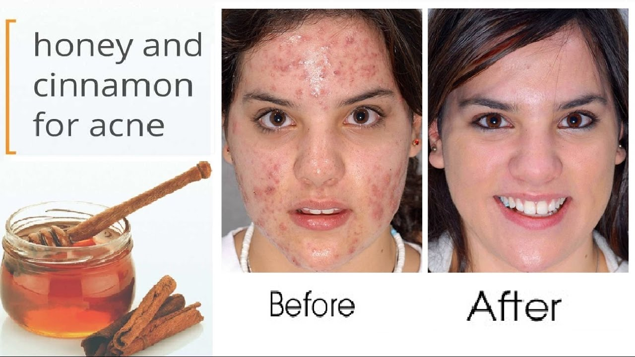does honey and cinnamon help acne? - tps