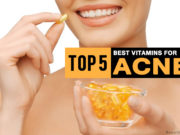 multivitamin for acne