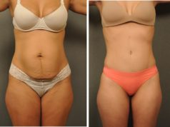 Tummy Tuck Drains