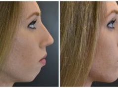 chin enhancement